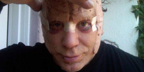 Pobre Hombre! Mickey Rourke arruinado por una cirugía