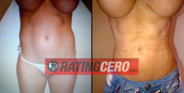 El antes y el después de la cirugía estética que se hizo Victoria Xipolitakis